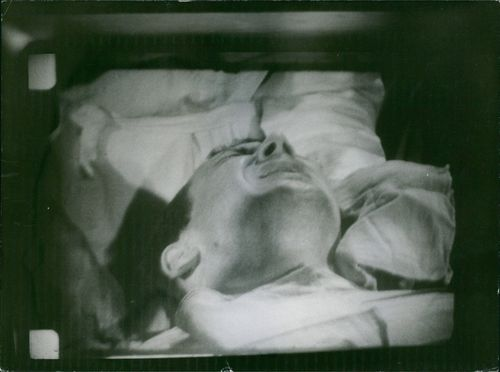 A man showing intense pain on his face while having an abdominal operation.