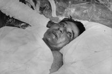 Louis Washkansky after his successful surgery of heart transplant,