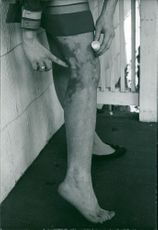 A woman showing her injured leg, putting medicine on it.