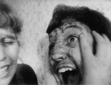 Wounded face of screaming boy.