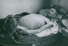 A German soldier lying sick and being treated by the Swedish volunteers.