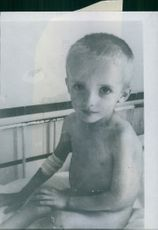 Starvation in Holland A pathetic eyed little boy in hospital. 1945